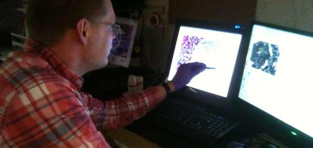 Bjorn, visiting pathologist, dissecting human pancreatic neuroendocrine tumors. Nov. 2014