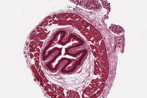 A scanned microscope slide containing mouse aorta stained with H&E