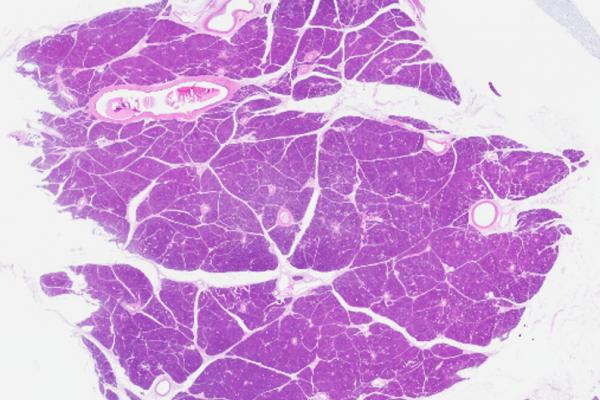 Human pancreas